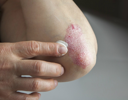 Scientists Discover Psoriasis Mutations, a Door to New Treatments