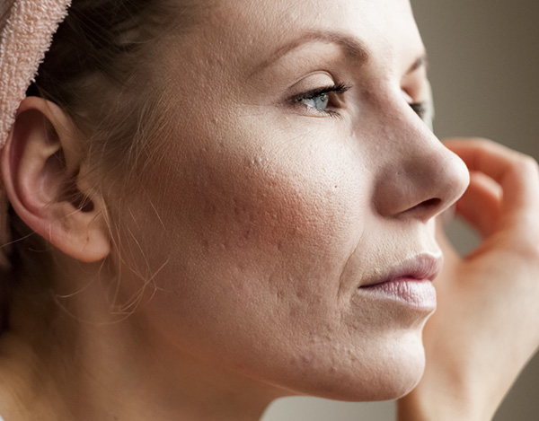Treating Acne Scarring with Soft Tissue Fillers