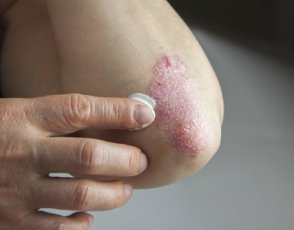 A person applying cream to psoriasis on their elbow