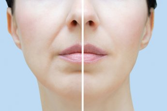 Juvederm fixed nasolabial folds on woman