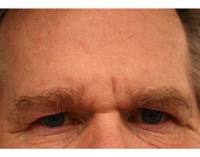 Treating Crow's Feet with Botox