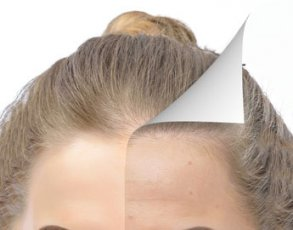 Restylane for the Forehead before and after picture