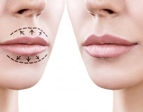 Assessing the Lips for Successful Rejuvenation