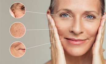 medica-depot-what-causes-fine-lines
