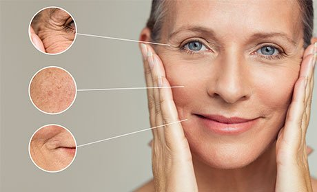 What Causes Fine Lines and How Do You Get Rid of Them?